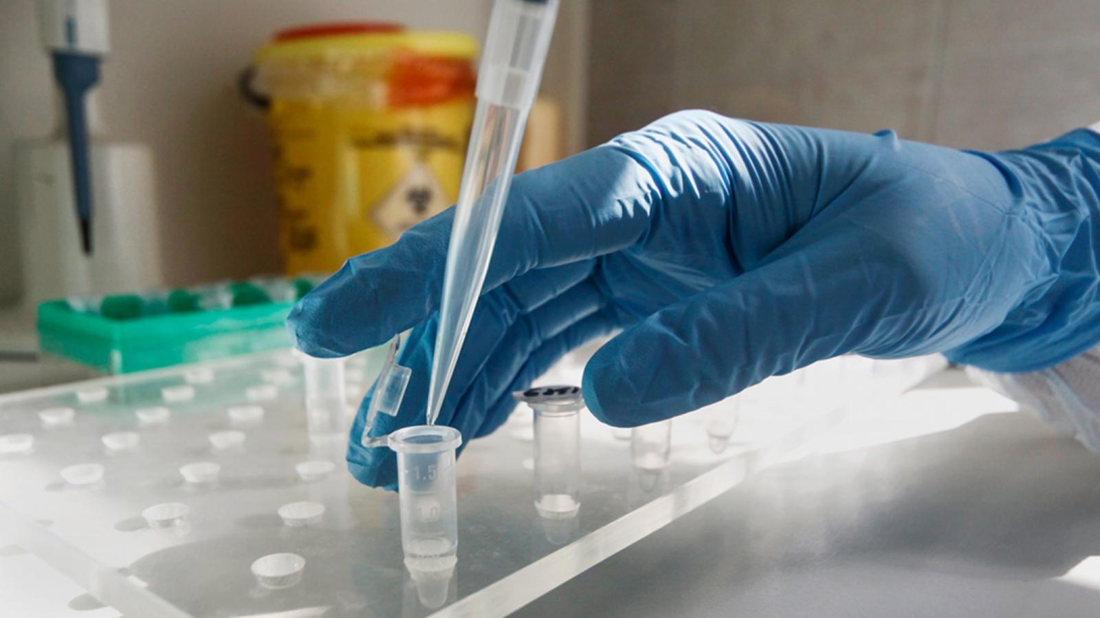 У сотрудника реанимации Херсонской инфекционной больницы обнаружили коронавирус